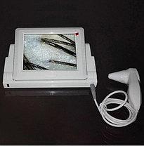 Новый аппарат диагностики волос и кожи, фото 2