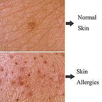 Новый аппарат диагностики волос и кожи, фото 3