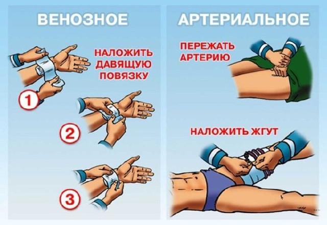 картинка как остановить жгутом кровотечение