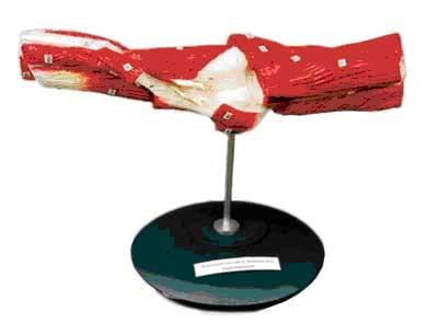 Локтевой сустав и мышцы его окружающие из пластмассы