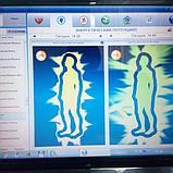Умный йод Органический Йод , IQ - LIFE органический концентрат, дерматит, экзема, псориаз, онкология......, фото 9