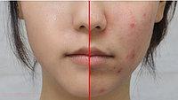 Проблемная кожа ( акне, черные точки, пост акне)