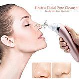 Вакуумный очиститель кожи Beauty Skin Care Specialist, фото 5