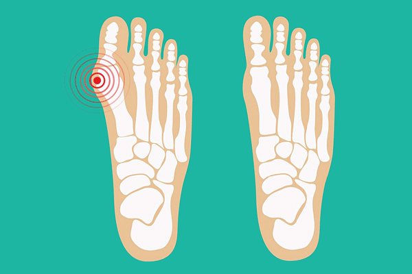 Vivalgus (Вивальгус) - средство от косточки на пальце
