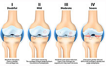 Препараты для суставов - при артритах, артрозе