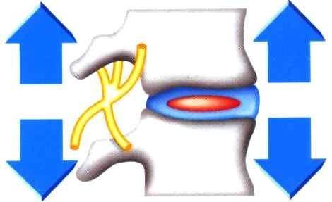 Растягивающийся пояс DOCTORRA «забота о спине» деликатное и эффективное лечение