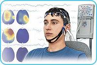 Электроэнцефалограф-регистратор «Энцефалан-ЭЭГР-19/26». Основная Модификация
