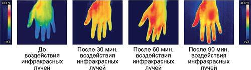 Уже через полчаса после включения перчаток кисти рук заметно теплеют (нажмите на изображение, чтобы увеличить)