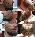 Пересадка бороды в Казахстане, фото 2