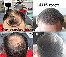 Восстановление волос, фото 6