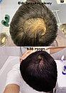 Трансплантация волос Алматы, фото 3