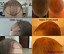 Лечение выпадения волос у мужчин, фото 2