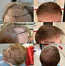 Лечение выпадения волос у мужчин, фото 3