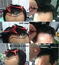 Лечение выпадения волос у мужчин, фото 4