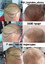 Лечение выпадения волос у мужчин, фото 5