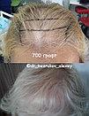 Пересадка волос в Алматы, фото 2