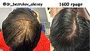 Пересадка волос в Алматы, фото 7