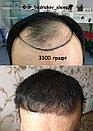 Пересадка волос в Алматы, фото 8