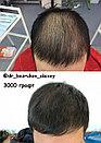 Пересадка волос в Алматы, фото 9