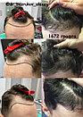 Пересадка волос в Алматы, фото 10