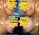 Пересадка волос на лицо, фото 10