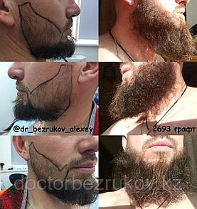 Пересадка волос на лицо