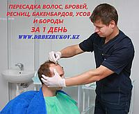 Пересадка волос методом фолликулярной экстракции в Алматы