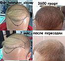 Восстановление волос в Казахстане Алматы, фото 4