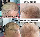 Восстановление волос в Казахстане Алматы, фото 5