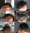 Восстановление волос в Казахстане Алматы, фото 8