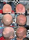 Восстановление волос в Казахстане Алматы, фото 9