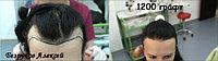 Бесшрамовая операция по пересадке волос в Алмате