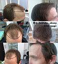 Бесшрамовая операция по пересадке волос в Алмате, фото 4