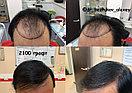 Бесшрамовая операция по пересадке волос в Алмате, фото 8