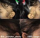 Безоперационная пересадка волос метод FUE в Алмате, фото 6