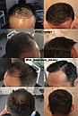 Безоперационная пересадка волос метод FUE в Алмате, фото 9