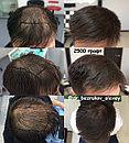 Безоперационная пересадка волос метод FUE в Алмате, фото 10