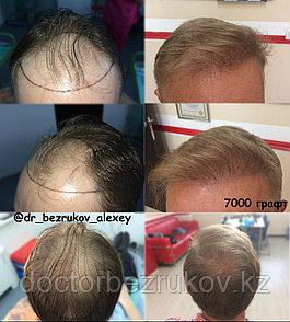 Безоперационная пересадка волос метод FUE в Алмате