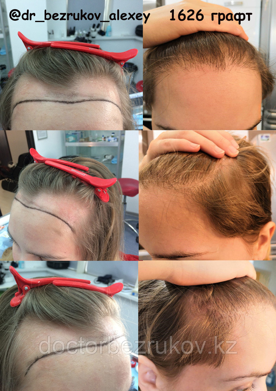 Пересадка волос у женщин в Алматы