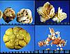 Скрининговое обследование - профилактика мочекаменной болезни.