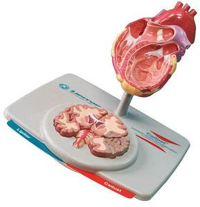 Модель Сердца и Мозга Lipitor