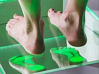 Подоскопия (обследование ступней)