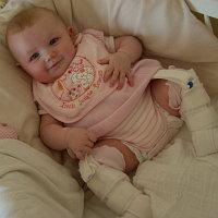 Ортопедические фиксаторы для новорожденных