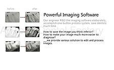 Стоматологический визиограф (радиовизиограф) HDR 500, фото 2