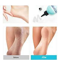 What's Wrong Help Vinegar Elbow&heel Peeling Soap [FRUDIA]
