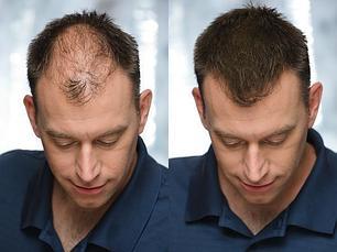 Загустители для волос и бороды
