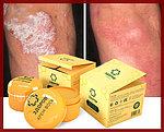 Крем воск ЗДОРОВ от псориаза, на основе натуральных продуктов пчеловодства, фото 3