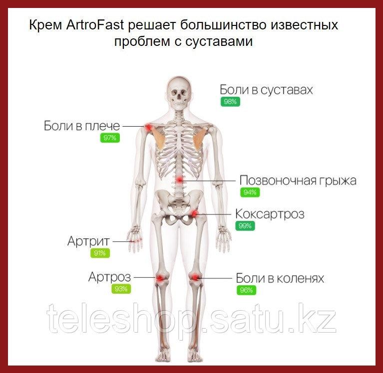 ArtroFast крем от боли в суставах и спине, натуральная формула - фото 7