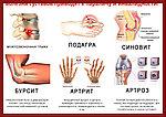 ArtroFast крем от боли в суставах и спине, натуральная формула, фото 9