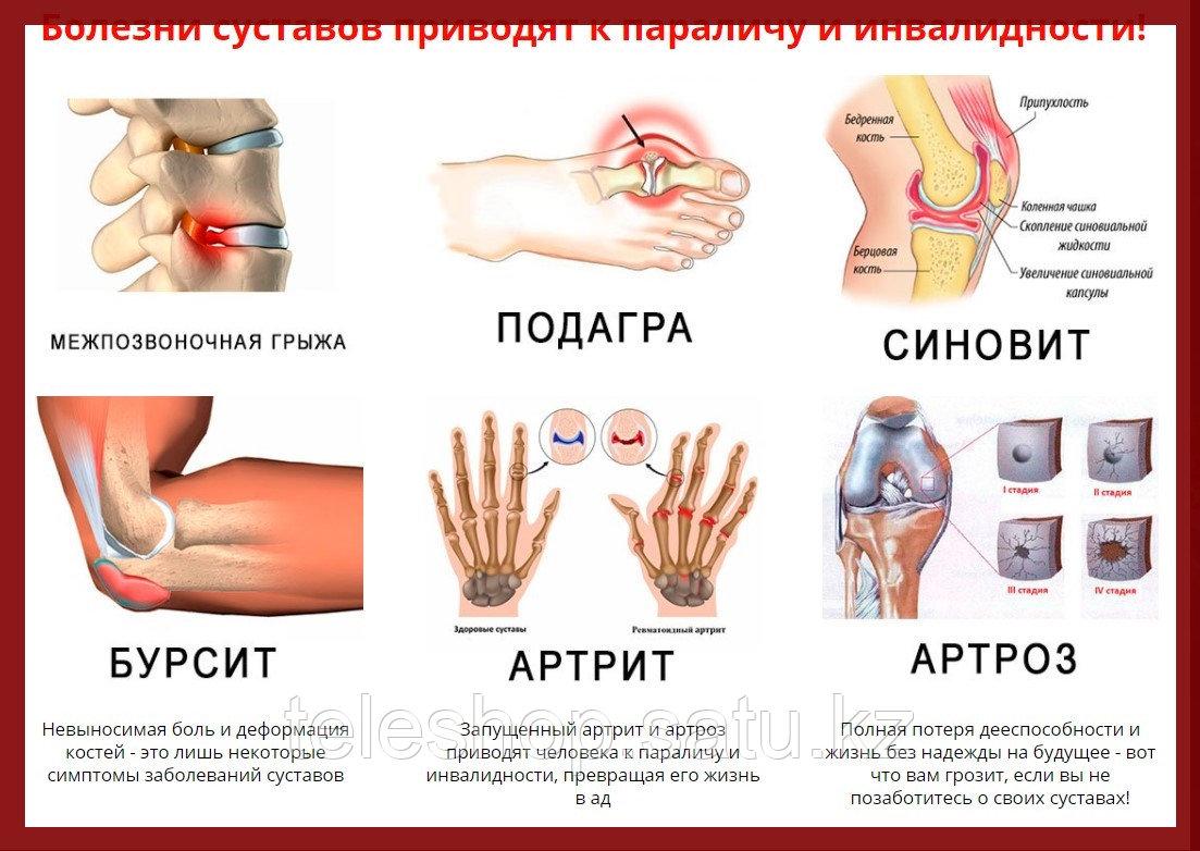 ArtroFast крем от боли в суставах и спине, натуральная формула - фото 9